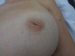 Example of an inverted nipple