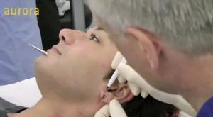'Tribal ear' correction