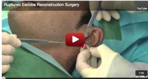 Tribal ear correction procedure