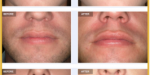 Aurora Clinics: Photo showing Permalip Before and After