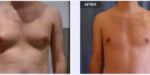 Aurora Clinics: Gynecomastia Surgery Before and After