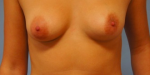 Aurora Clinics: Tuberous breasts - how do you know if you have them?