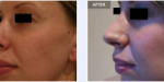 Aurora Clinics: Photo showing Rhinoplasty (Nose Job) Profile Before and After