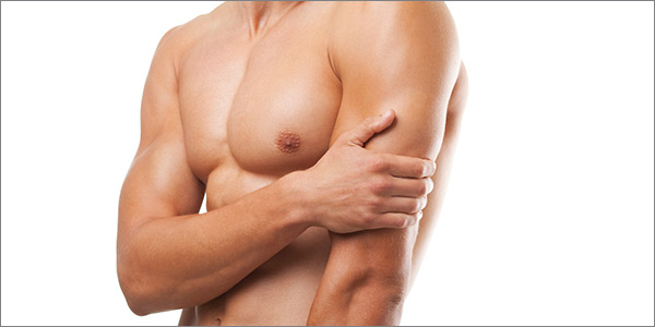 Aurora Clinics: Gynecomastia Surgery can help treat 'man boobs'