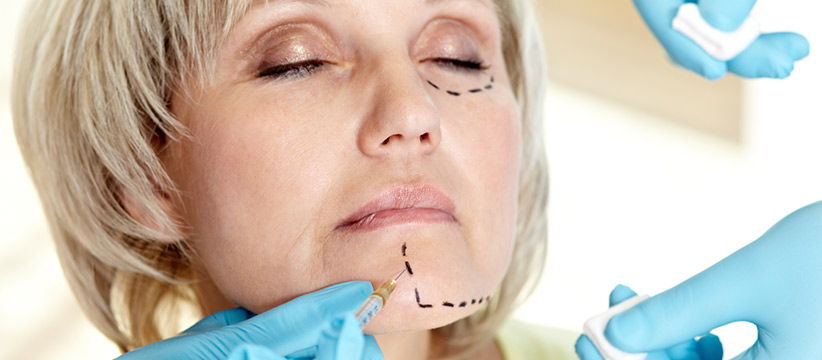 Aurora Clinics: Photo of Facelift Surgery