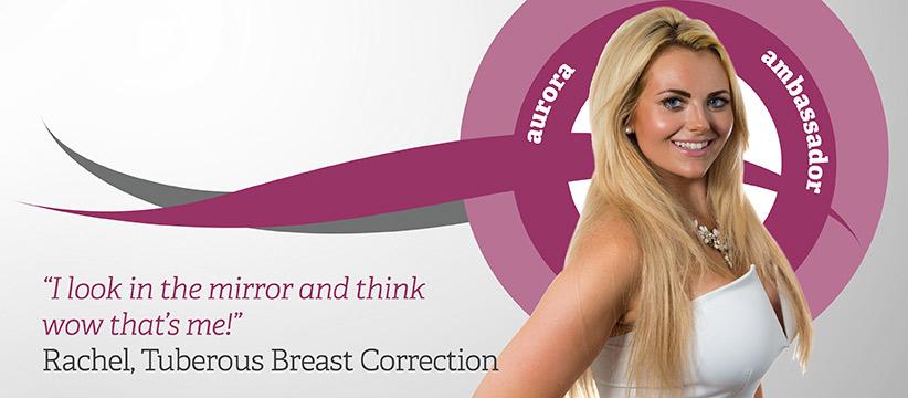 Aurora Clinics: Photo of Tuberous Breast Correction