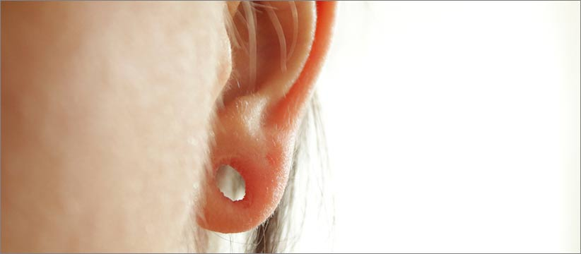 Aurora Clinics: Stretched Earlobe Repair