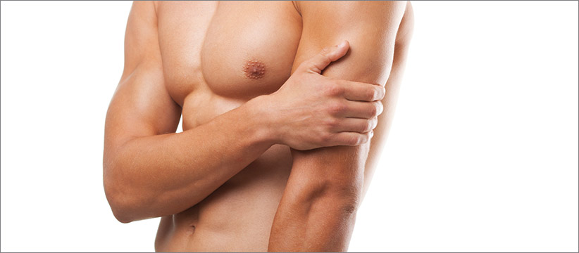 Aurora Clinics: Photo of Gynecomastia Surgery
