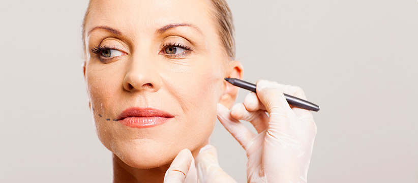Aurora Clinics: Photo showing Short Scar Facelift surgery - alternative to a full facelift
