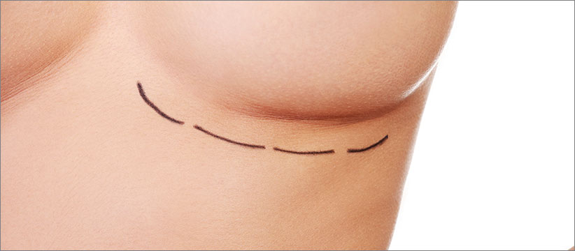 Aurora Clinics: Photo of OCEAN Breast Enlargement