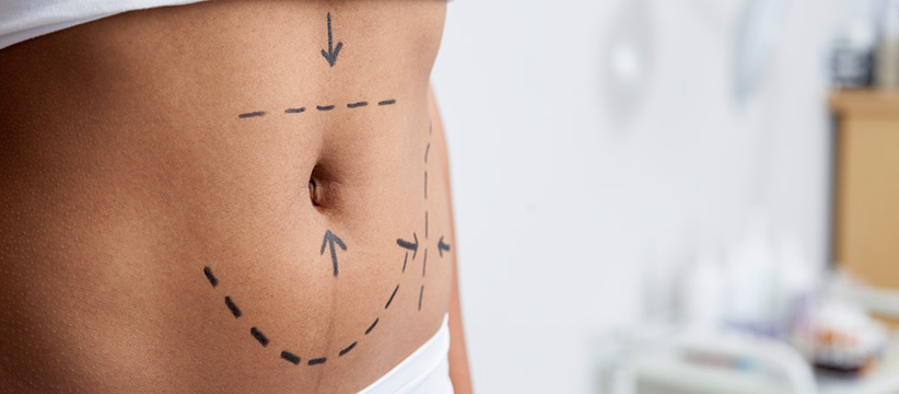 Aurora Clinics: Photo of Mini Tummy Tuck Surgery