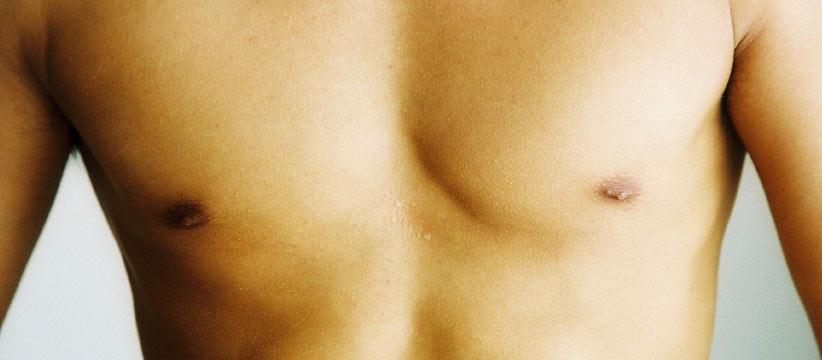 Aurora Clinics: Photo of Nipple Reduction Surgery