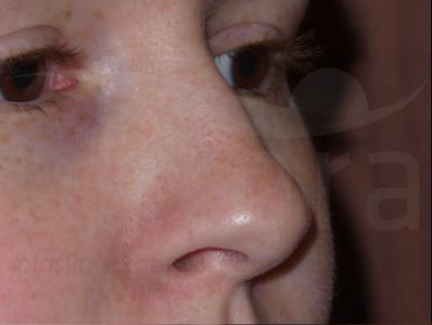 Before-Rhinoplasty