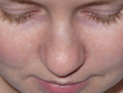 Before-Rhinoplasty