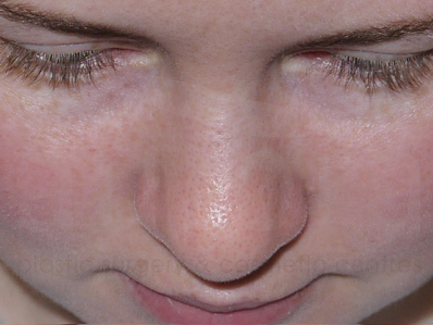 After-Rhinoplasty