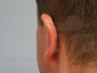 After-Ear pinning