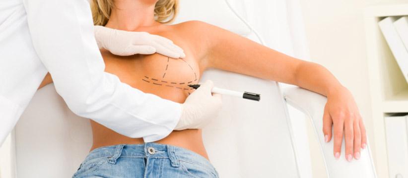 Aurora Clinics: Photo of Breast Asymmetry Correction