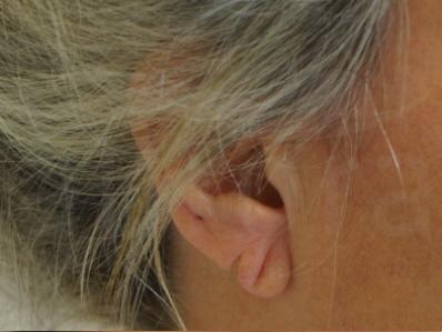 Before-Split earlobe