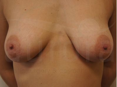 Before-Areola Reduction