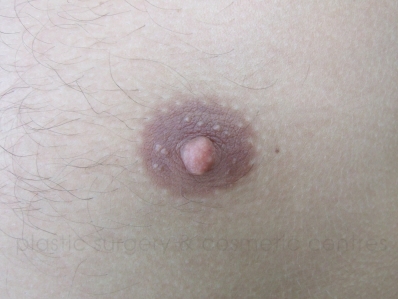 Before-Nipple reduction