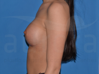 After-Breast Enlargement 21815