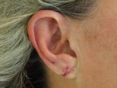 After-Split earlobe