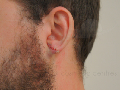 After-Earlobe Surgery