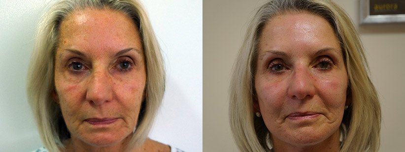 Diane---Before-and-After-Surgery