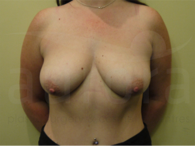 Before- Breast Enlargement with Uplift
