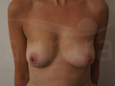 Before-Breast Asymmetry