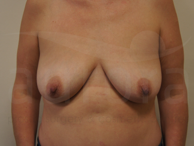 Before-Breast Enlargment with Uplift