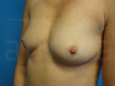 aurora breast lift