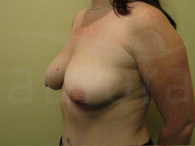 Before-Breast Enlargement with Uplift