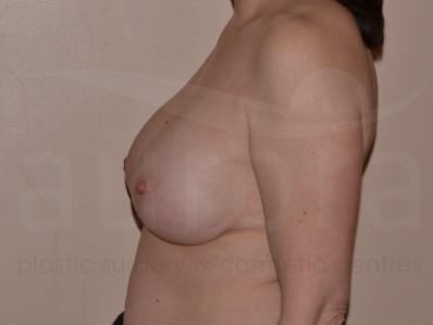 Before-Breast Implant Removal