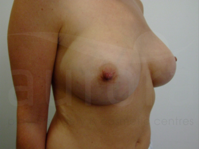 Before-Implant Removal