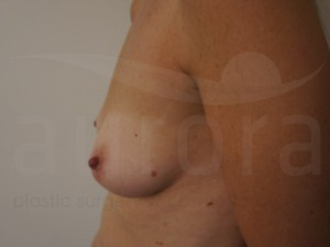 View our latest before and after photos of Breast Enlargement Surgery