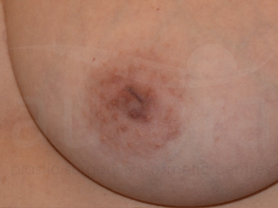 Before-Inverted nipple