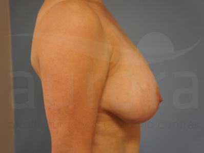 Before-Breast Reduction