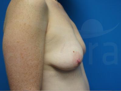 Before-OCEAN Breast Enlargement
