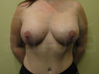 After- Breast Enlargement with Uplift