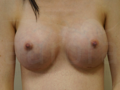 After-Breast Enlargement