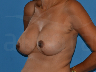 Before-Breast Implant