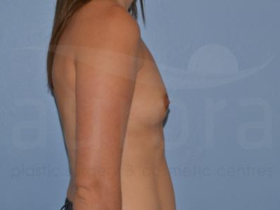 Before-Breast Enlargement