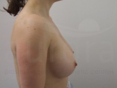 Before-Removal and replacement of implants