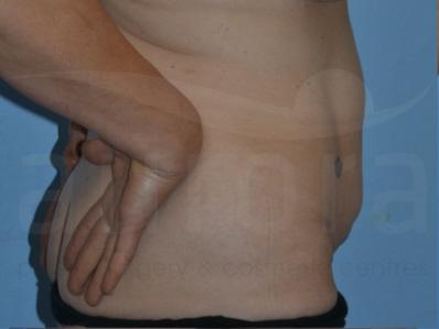 Before-Tummy Tuck
