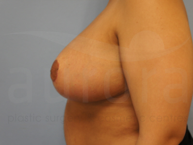 After-Breast Reduction