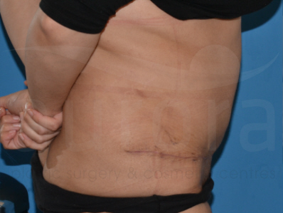 After-Tummy Tuck