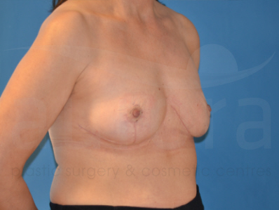 After-Breast Implant Removal