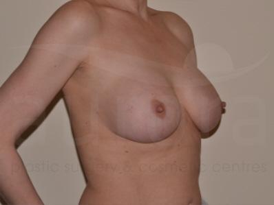 aurora breast surgery jpg 1200x900