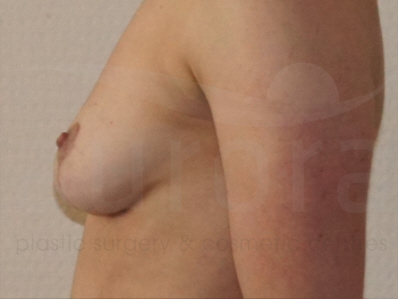 After-Implant Removal
